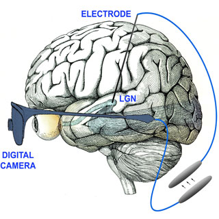 THE VISUAL PROSTHESIS